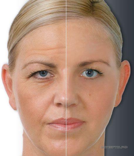 Что делать с лицом после процедуры ботокс